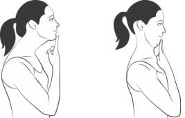 Figure 5: Chin Tuck Exercise